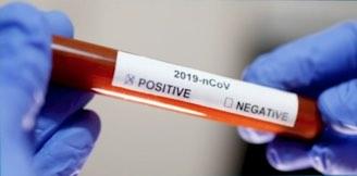Bluttest in den Händen mit positivem Ergebnis COVID-19